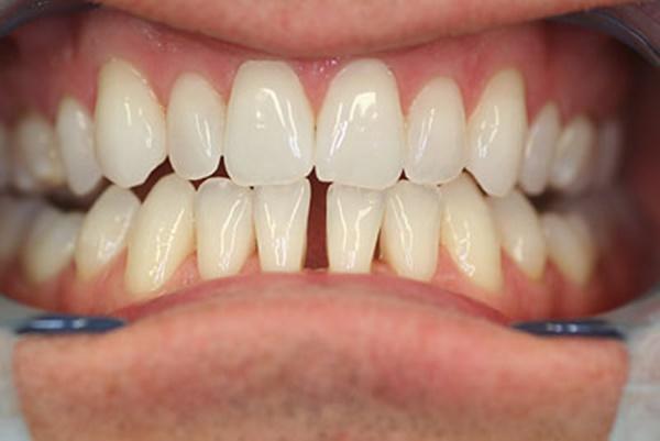 Có nhiều nguyên nhân dẫn đến tình trạng răng bị thưa