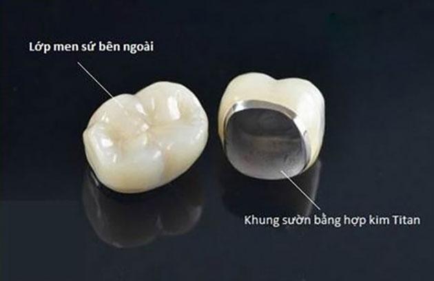 Hình ảnh cấu tạo của răng sứ titan