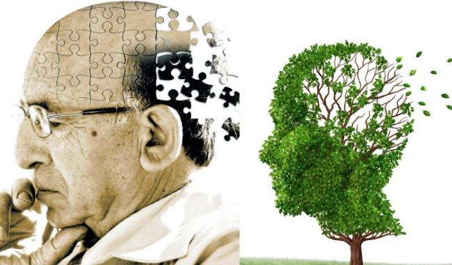 Bệnh làm suy giảm và dần mất đi trí nhớ