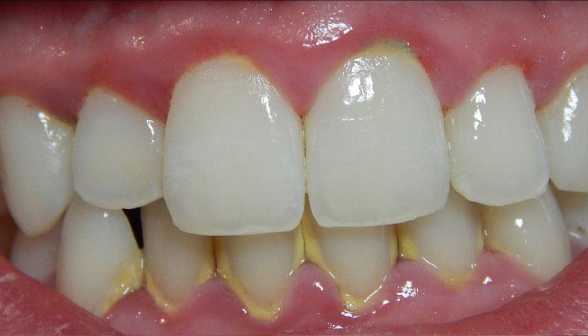 Cao răng ảnh hưởng tới sức khỏe răng miệng và gây mất tự tin