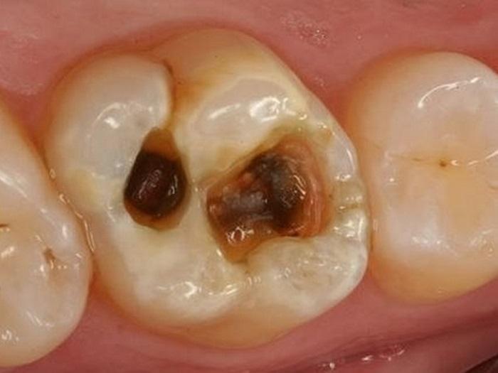 Trường hợp tủy răng bị chết làm cho răng vàng