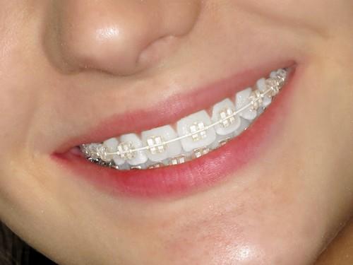 Kiểu niềng răng sứ mắc cài cổ điển