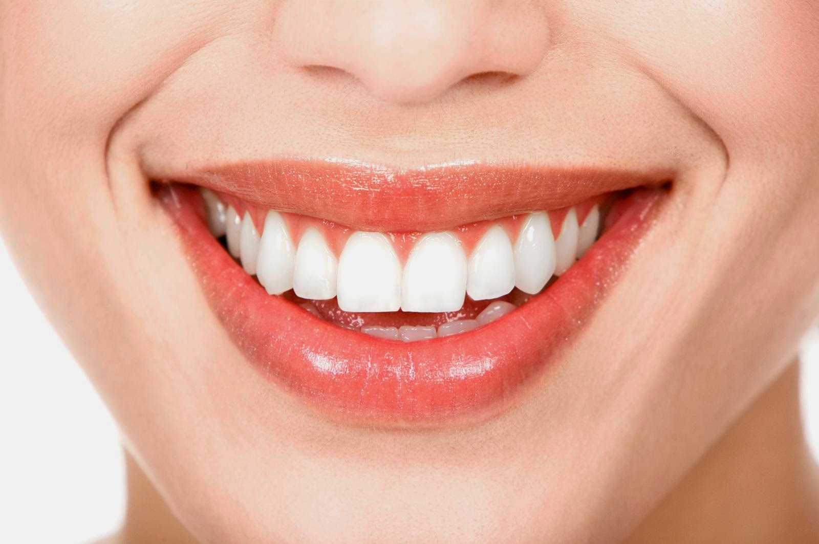Khuôn miệng cười đẹp cho bạn luôn tự tin