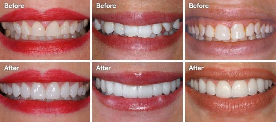 Chăm sóc răng đúng cách giúp làm tăng tuổi thọ cho răng sứ veneer