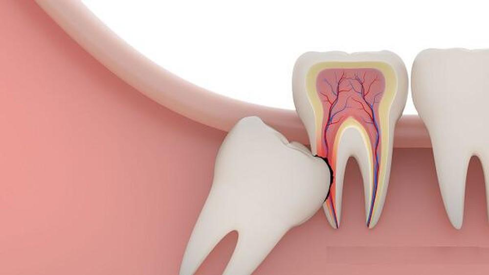 Răng khôn có thật sự khôn?