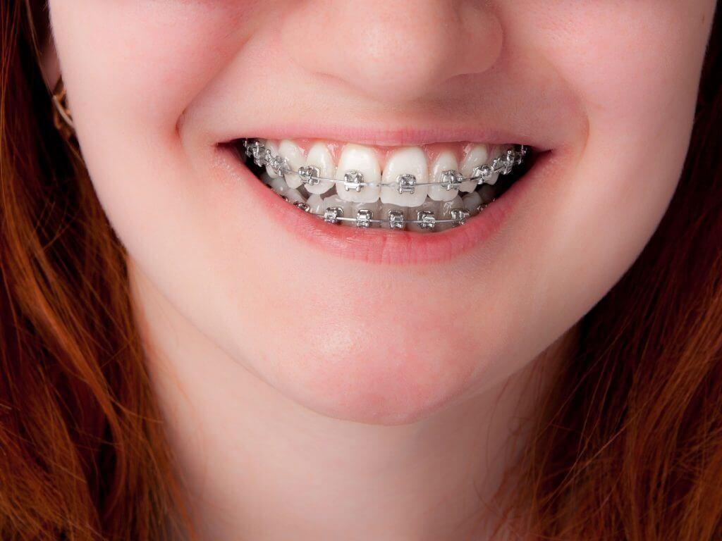 Niềng răng kim loại có độ chính xác cao