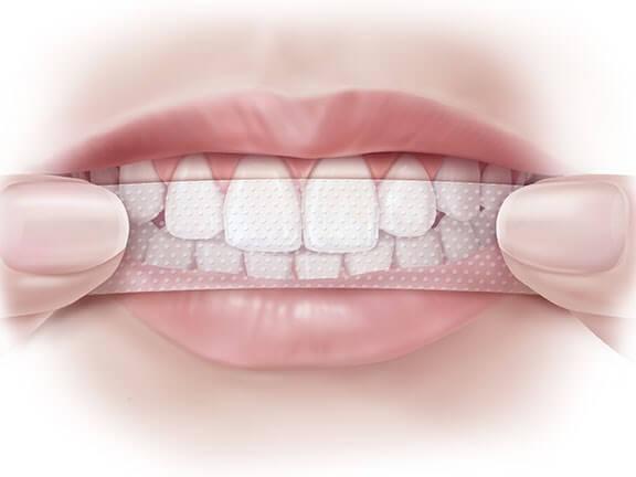 Phần mặt trong răng và chân răng khó có thể làm sạch hoàn toàn được