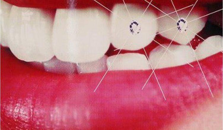 Răng không bị bào mòn hay sứt mẻ
