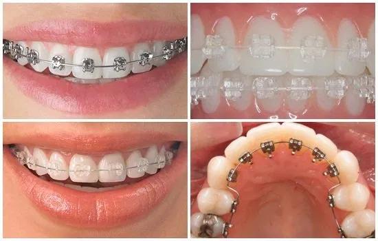 Một số loại mắc cái được sử dụng trong phương pháp thẩm mỹ răng hô
