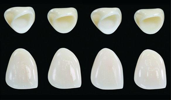 Sở hữu nhiều ưu điểm vượt trội, răng sứ Venus một thời trở thành sự lựa chọn hàng đầu của khách hàng