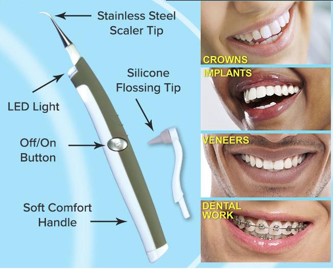 Dụng cụ lấy cao răng tại nhà