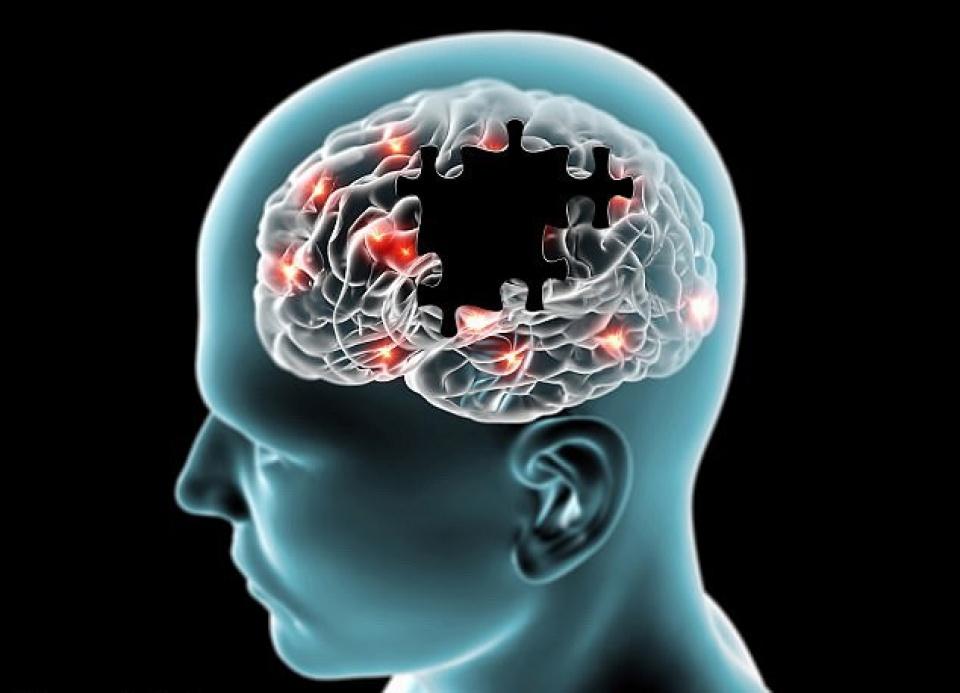 Có khá nhiều nguyên nhân khiến bạn mắc phải bệnh Alzheimer