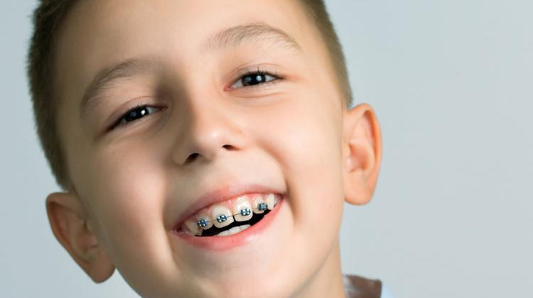 Thời điểm phù hợp nhất để niềng răng là từ 6 tuổi trở điThời điểm phù hợp nhất để niềng răng là từ 6 tuổi trở đi