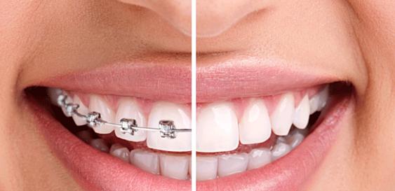 Một nụ cười tự tin sau khi niềng răngMột nụ cười tự tin sau khi niềng răng
