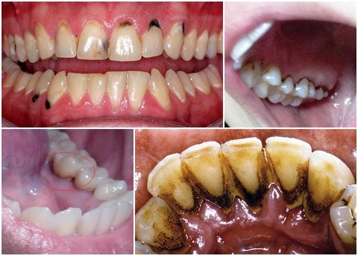 Vôi răng đen ảnh hưởng đến sức khỏe răng miệng