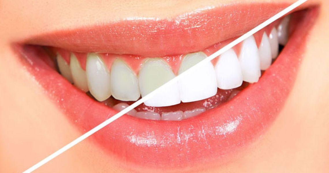 Bọc răng sứ giúp phục hồi các khiếm khuyết của răng