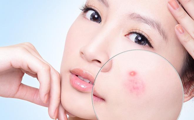 Tác dụng của cây lô hội với da mặt trong việc trị mụn trứng cá