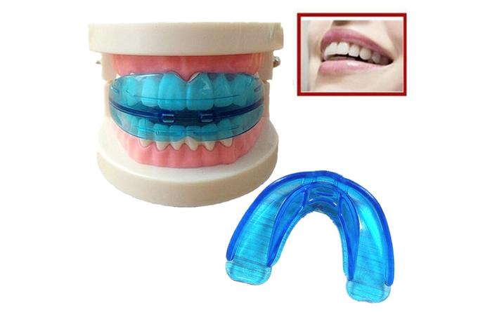 Niềng răng silicone là loại niềng răng như thế nào?