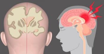 """Giải đáp thắc mắc: """"Teo não là bệnh gì, có nguy hiểm đến tính mạng hay không?"""""""
