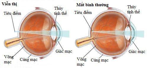 Mắt bị viễn thị làm cho hình ảnh bị mờ khi lại gần
