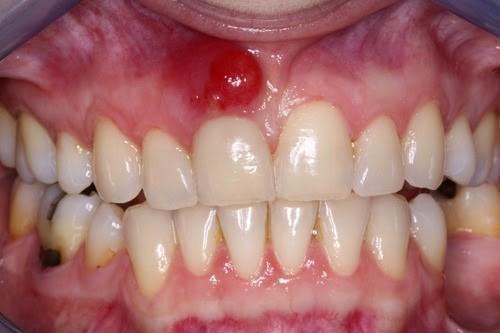 Nướu răng xuất hiện mủ