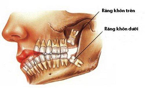 Nên loại bỏ răng khôn mọc ngầm càng sớm càng tốt
